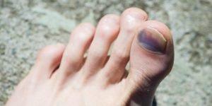 uñas negras del deportista