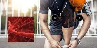 Incrediwear una tecnología antiinflamatoria