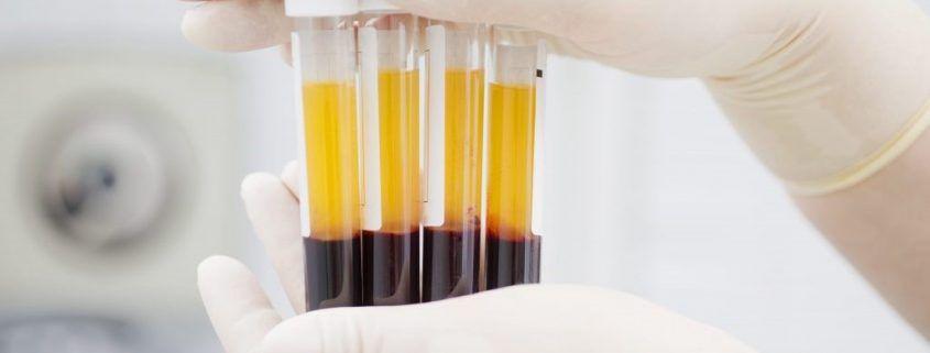 Las inyecciones de plasma rico en plaquetas (PRP) pueden ayudar a acelerar la regeneración del tejido muscular dañado en el caso de la distensión muscular