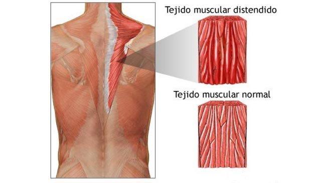 Durante actividades que requieren movimientos explosivos la fuerza a través del músculo y el tendón conectados puede ser tan grande que los tejidos se desgarran, ya sea parcial o completamente causando una distensión muscular